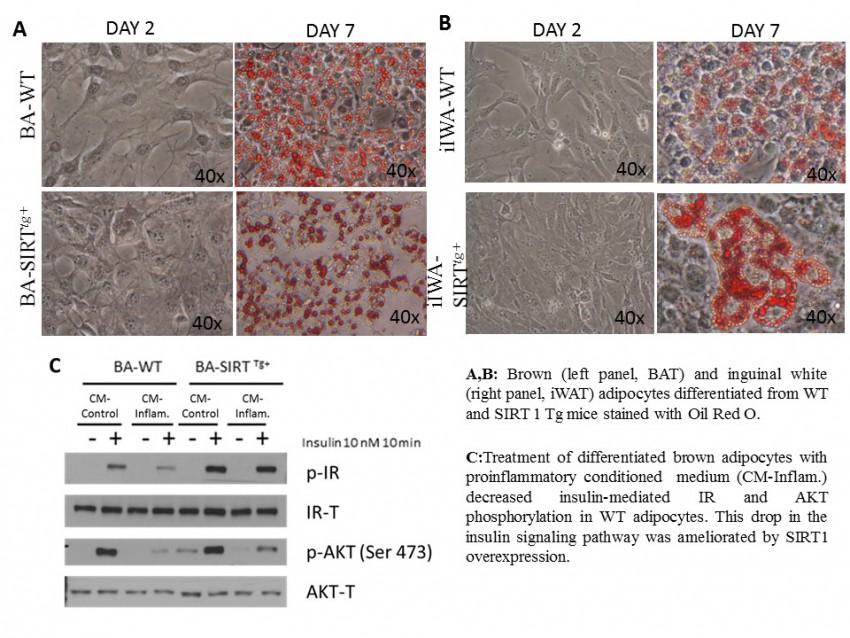 mecanismo molecular de la diabetes tipo 1